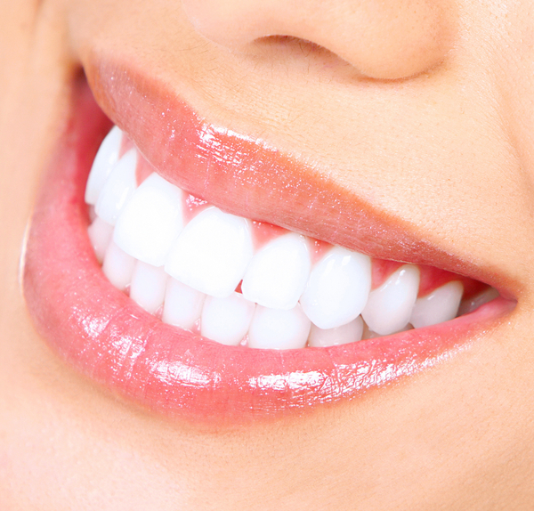Teeth whitening at Hassid Dental.