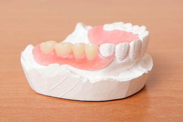 A partial denture replaces missing teeth.