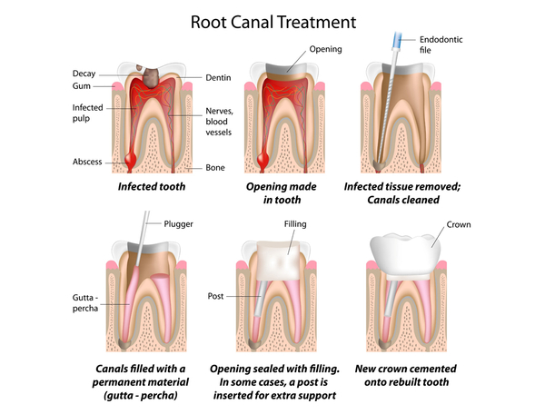 1-root-canal-therapy-1.jpg