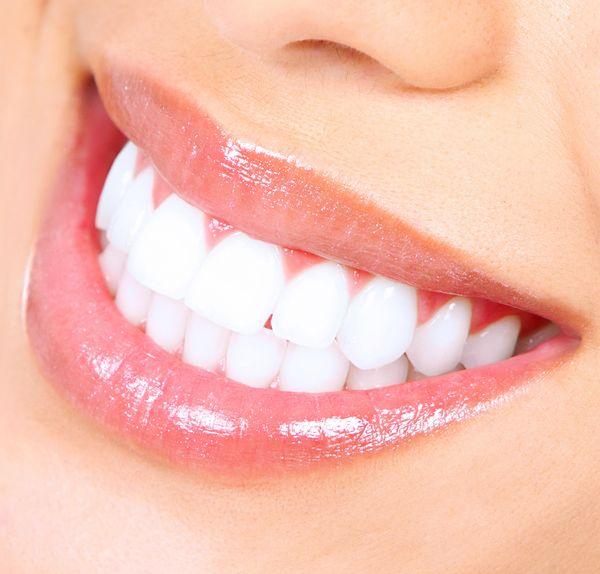 Teeth whitening at Hassid Dental.