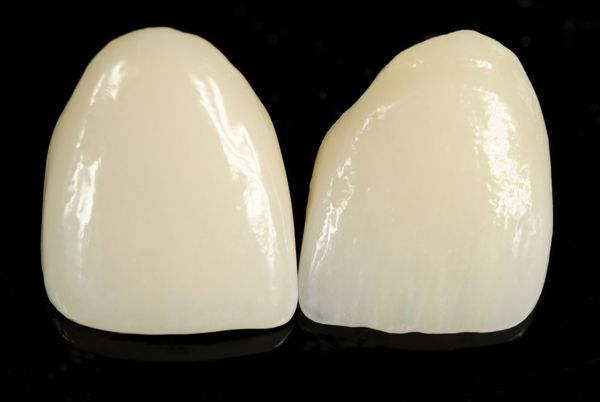 A veneer restores a tooth and covers the front.