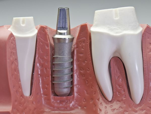 1-dental-implant-1.jpg