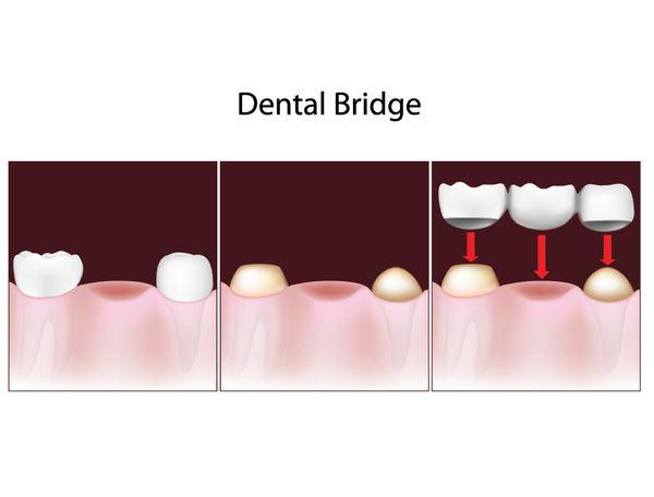 3-bridge.jpg