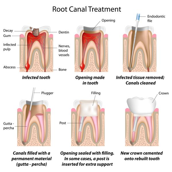 Root canal therapy for tooth decay that has reached the nerve.