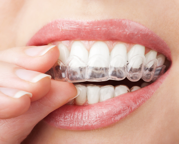 Invisalign straightens teeth without metal brackets and wires.