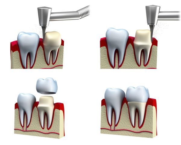 A crown (cap) is a full coverage restoration of a tooth.