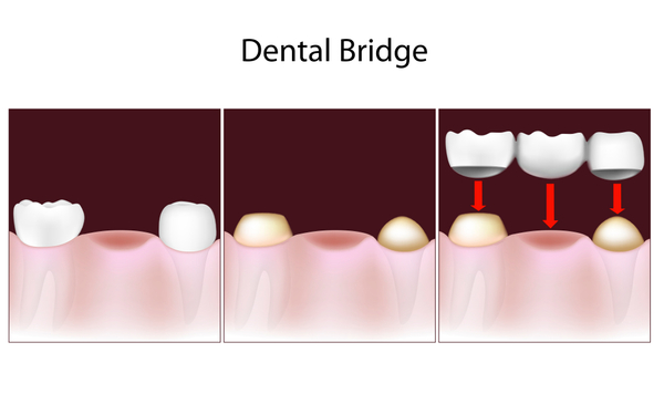 A bridge is three or more crowns placed on two or more teeth.