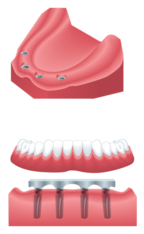 implant-supported-denture-3.jpg