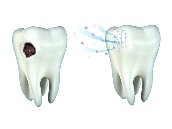 A filing is the treatment for a cavity.