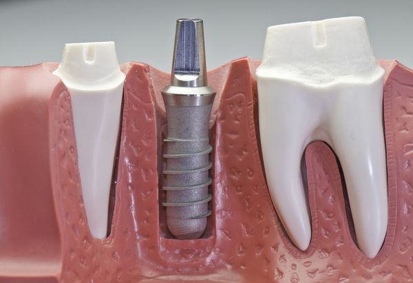A dental implant is a replacement for the root of a tooth.