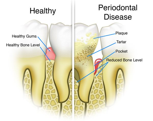 Scaling and root planing for deep cleaning of teeth and mouth.