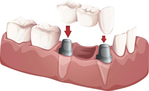 A bridge replaces missing teeth.