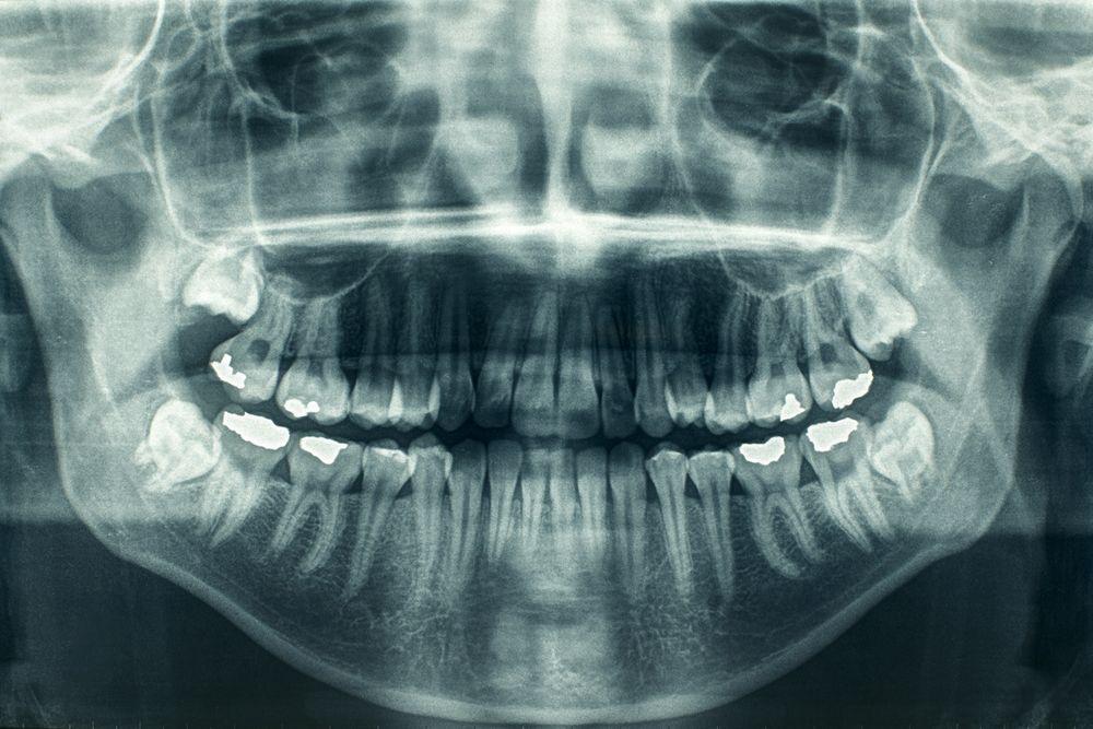 Digital X-rays at Hassid Dental.