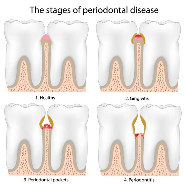 Scaling and root planing help prevent gum disease.