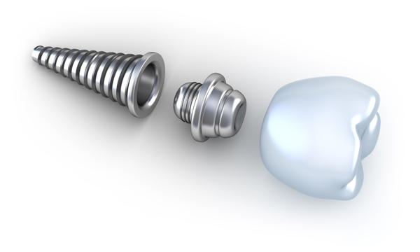 A dental implant can replace a single tooth or multiple teeth.