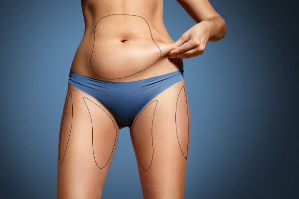Emsculpt_CoolSculpting.png