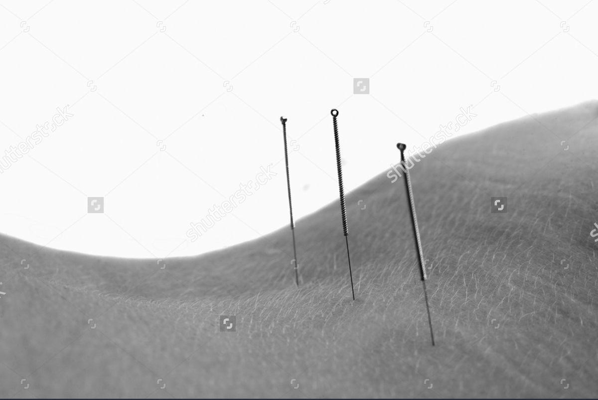 stock-photo-acupuncture-597741545.jpg