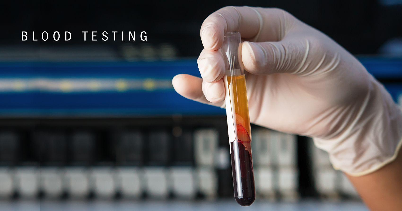 bloodtesting.main.jpg