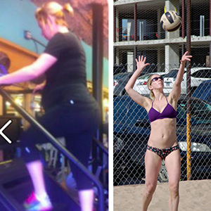 Melanie Before and after