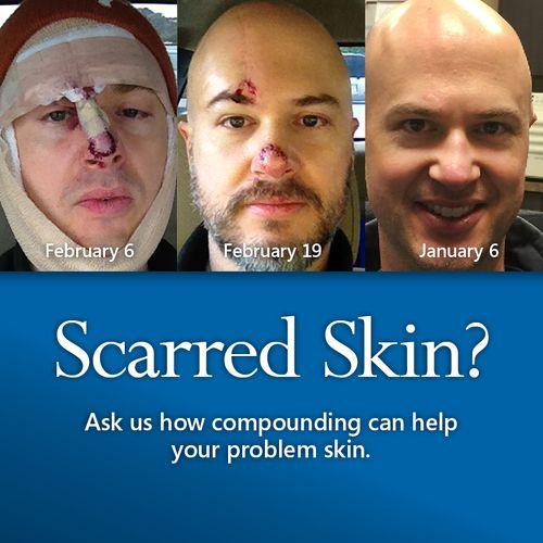 Dermatology Scarred Skin.jpg