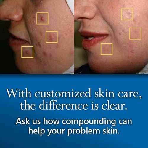 Dermatology Blotchy Skin.jpg