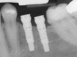 implants-x-ray.jpg