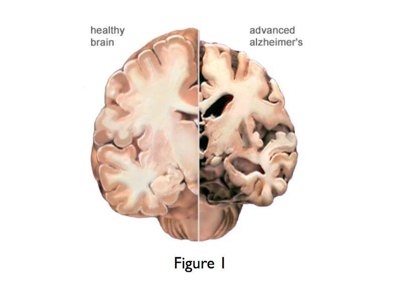 Notes on Alzheimer's Dementia from ACAM 2016