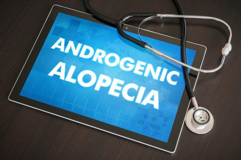 Androgenic Alopecia.jpg