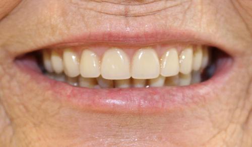 dentures after.jpg