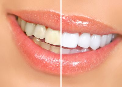 Teeth Whitening Austin Texas