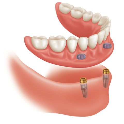 partial dentures austin