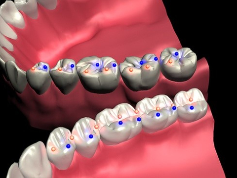 Tooth Equilibration.jpg