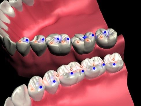 Tooth Equilibration