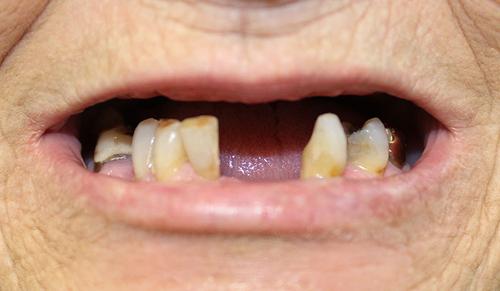 dentures before.jpg