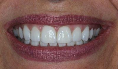 smile makeover photo