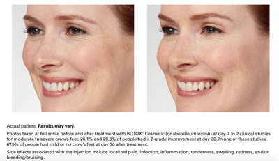 Botox in Thousand Oaks California