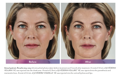 Juvederm Thousand Oaks