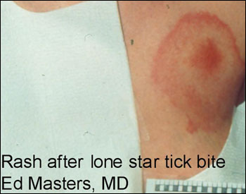 Bullseye Tick Bite