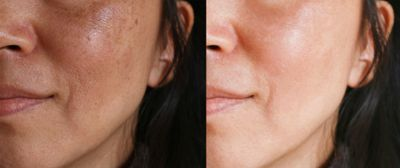 IPL Photofacial Los Angeles