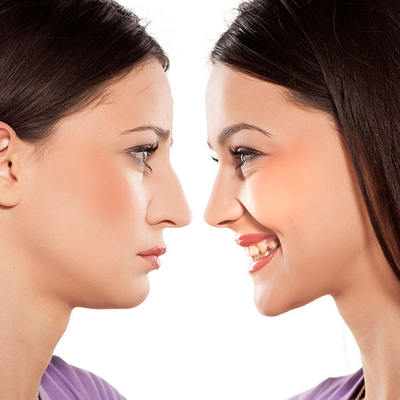 Houston Rhinoplasty Surgeons