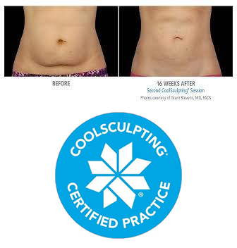 Coolsculpting-Paradise-Valley.png
