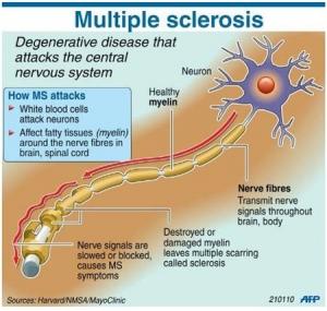 Multiple-Sclerosis-pill1-300x285.jpg